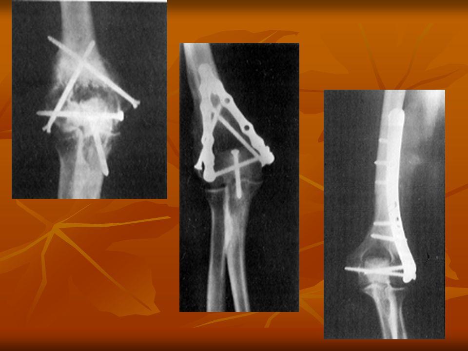 Fractures de ladulte Plaque sur un seul pilier interne ou externe Plaque prémoulée de Lecestre