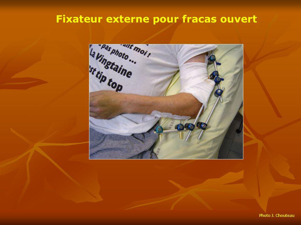 Fixateur externe pour fracas ouvert Photo J. Chouteau