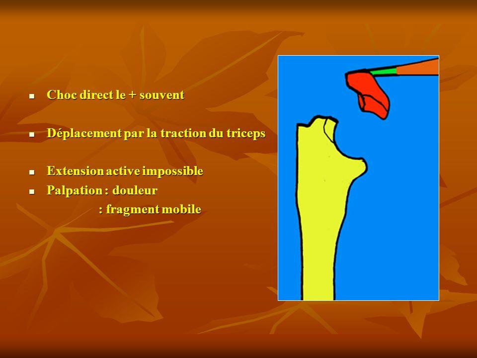 Choc direct le + souvent Choc direct le + souvent Déplacement par la traction du triceps Déplacement par la traction du triceps Extension active impos