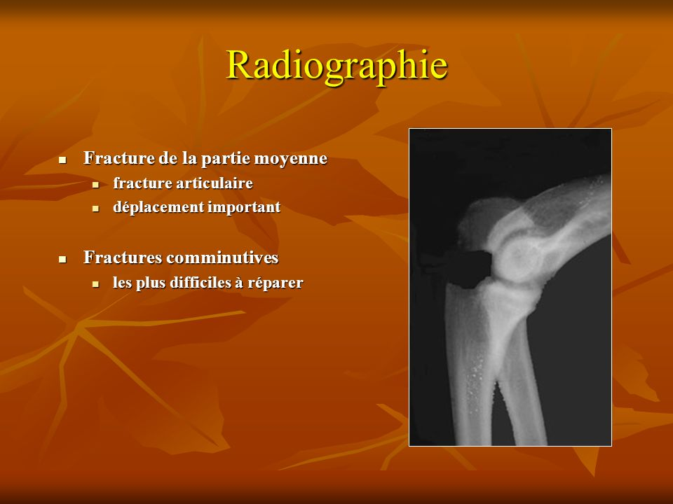 Radiographie Fracture de la partie moyenne Fracture de la partie moyenne fracture articulaire fracture articulaire déplacement important déplacement i
