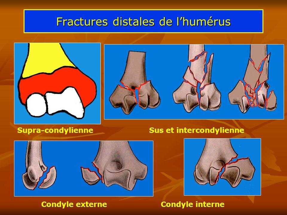 Fractures distales de lhumérus Supra-condylienne Sus et intercondylienne Condyle externeCondyle interne