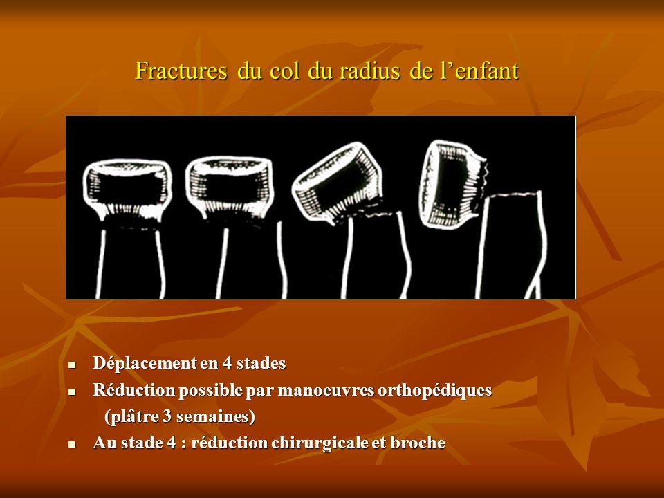Fractures du col du radius de lenfant Déplacement en 4 stades Déplacement en 4 stades Réduction possible par manoeuvres orthopédiques Réduction possib