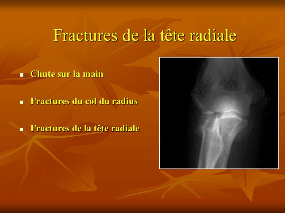 Chute sur la main Chute sur la main Fractures du col du radius Fractures du col du radius Fractures de la tête radiale Fractures de la tête radiale Fr
