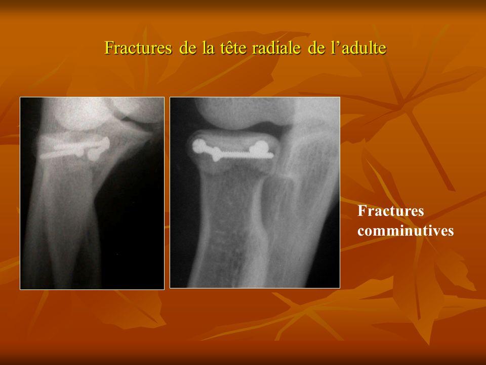 Fractures de la tête radiale de ladulte Fractures comminutives