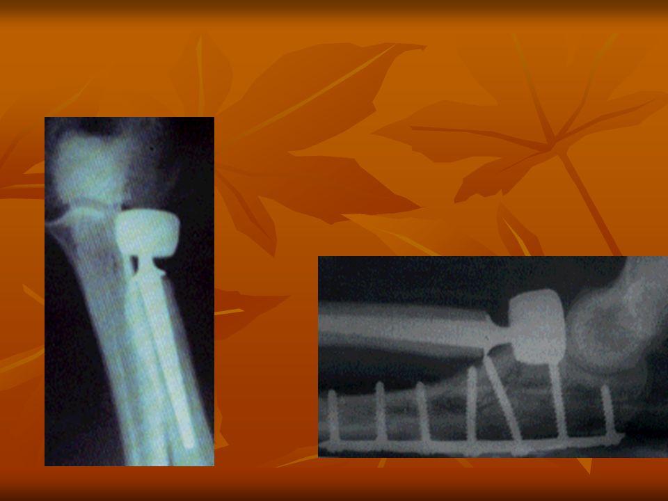 Complications Paralysie radiale par lésion branche motrice Paralysie radiale par lésion branche motrice sepsis sur prothèse ou arthrite septique sepsis sur prothèse ou arthrite septique instabilité du coude instabilité du coude douleur poignet ++ avec résection tête douleur poignet ++ avec résection tête blocage articulaire matériel inadapté blocage articulaire matériel inadapté luxation récidivante du coude luxation récidivante du coude