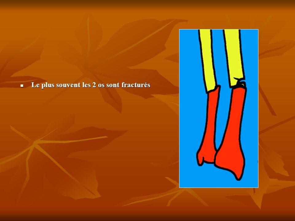 Le plus souvent les 2 os sont fracturés Le plus souvent les 2 os sont fracturés