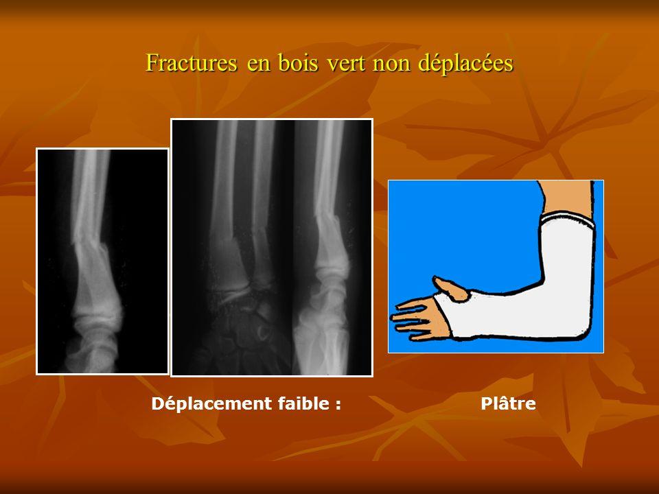 Fractures en bois vert non déplacées Déplacement faible :Plâtre