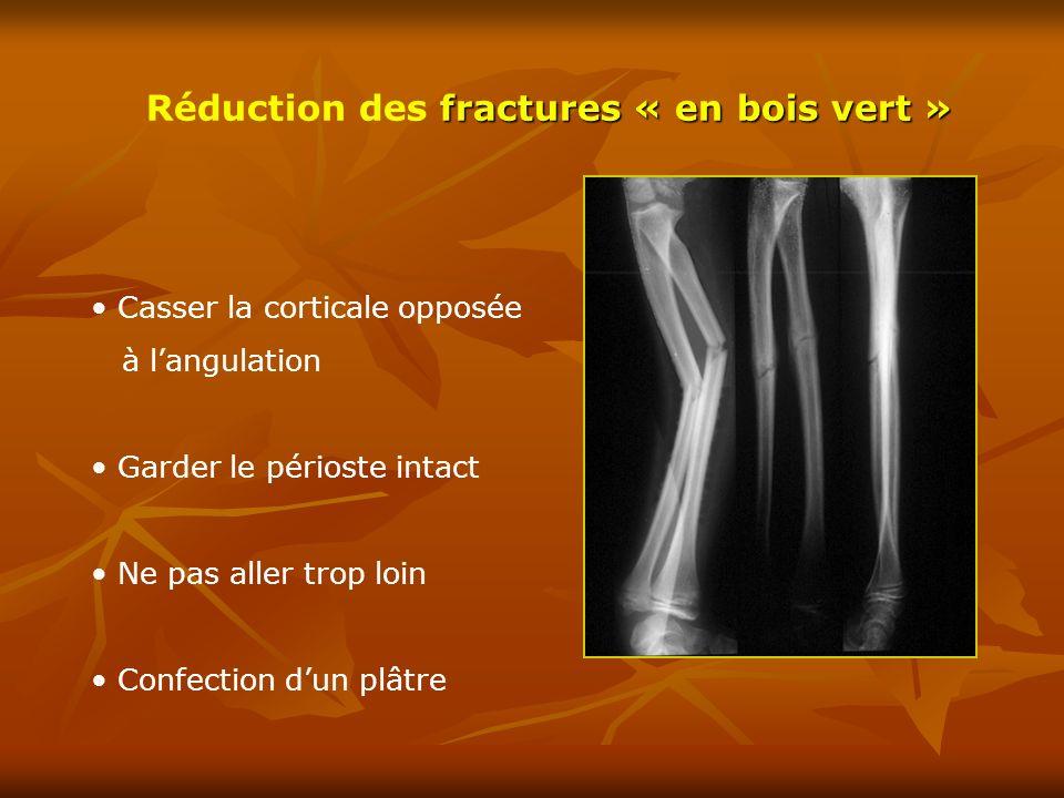 fractures « en bois vert » Réduction des fractures « en bois vert » Casser la corticale opposée à langulation Garder le périoste intact Ne pas aller t