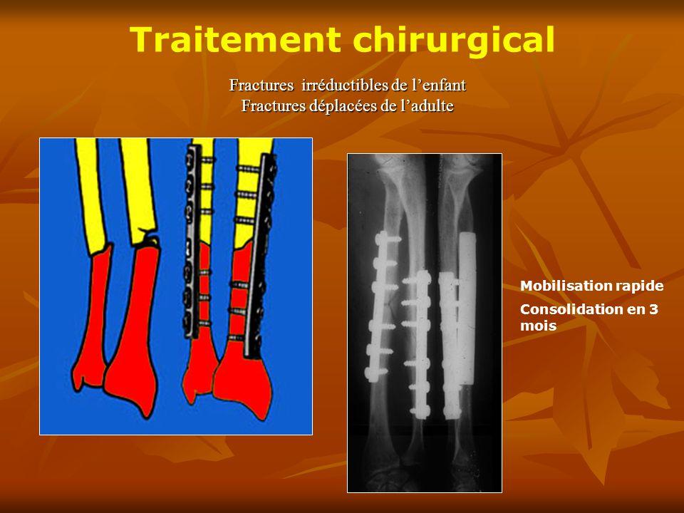 Fractures irréductibles de lenfant Fractures déplacées de ladulte Traitement chirurgical Mobilisation rapide Consolidation en 3 mois