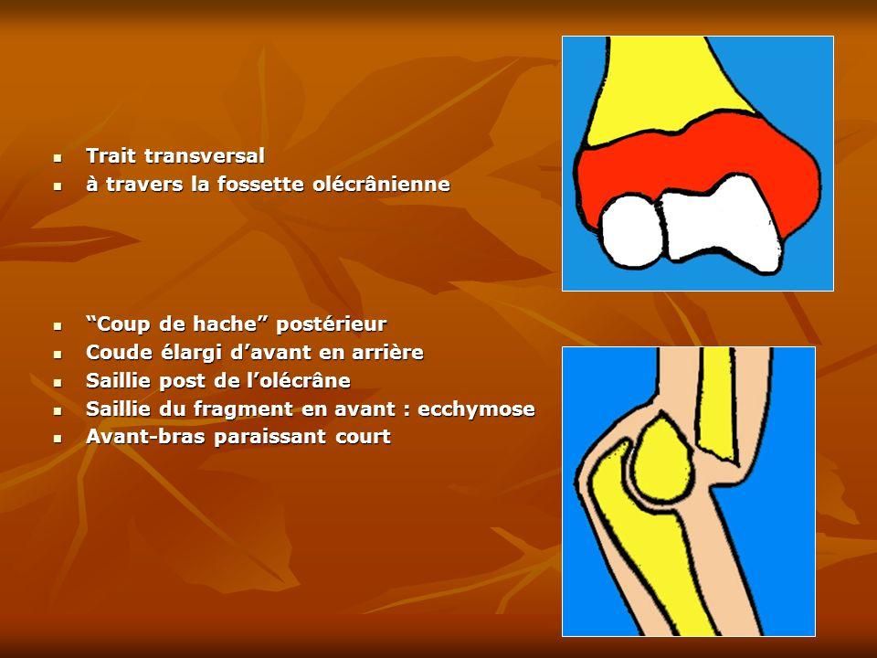 Trait transversal Trait transversal à travers la fossette olécrânienne à travers la fossette olécrânienne Coup de hache postérieur Coup de hache posté