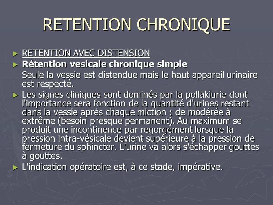 RETENTION CHRONIQUE RETENTION AVEC DISTENSION RETENTION AVEC DISTENSION Rétention vesicale chronique simple Rétention vesicale chronique simple Seule la vessie est distendue mais le haut appareil urinaire est respecté.