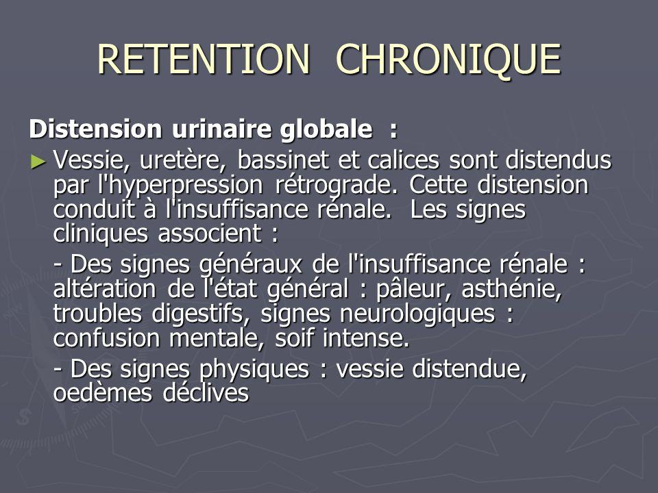 RETENTION CHRONIQUE Distension urinaire globale : Vessie, uretère, bassinet et calices sont distendus par l hyperpression rétrograde.
