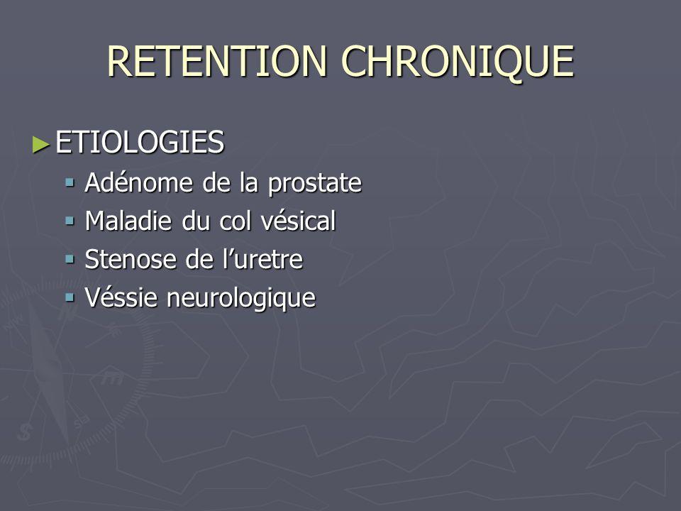 RETENTION CHRONIQUE ETIOLOGIES ETIOLOGIES Adénome de la prostate Adénome de la prostate Maladie du col vésical Maladie du col vésical Stenose de luretre Stenose de luretre Véssie neurologique Véssie neurologique