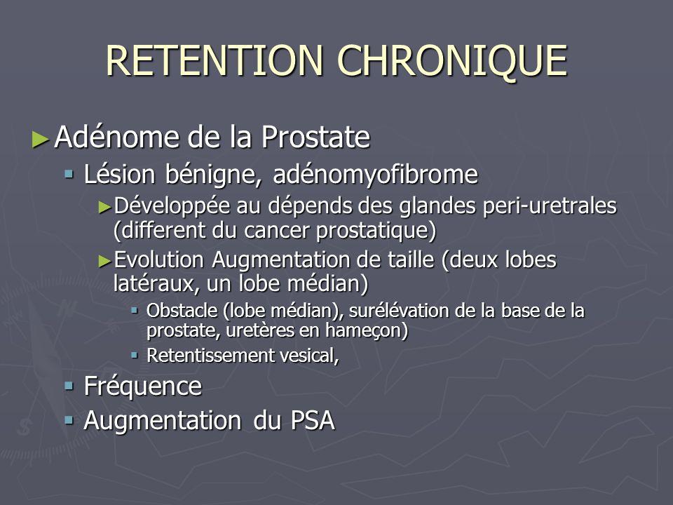 RETENTION CHRONIQUE Adénome de la Prostate Adénome de la Prostate Lésion bénigne, adénomyofibrome Lésion bénigne, adénomyofibrome Développée au dépends des glandes peri-uretrales (different du cancer prostatique) Développée au dépends des glandes peri-uretrales (different du cancer prostatique) Evolution Augmentation de taille (deux lobes latéraux, un lobe médian) Evolution Augmentation de taille (deux lobes latéraux, un lobe médian) Obstacle (lobe médian), surélévation de la base de la prostate, uretères en hameçon) Obstacle (lobe médian), surélévation de la base de la prostate, uretères en hameçon) Retentissement vesical, Retentissement vesical, Fréquence Fréquence Augmentation du PSA Augmentation du PSA