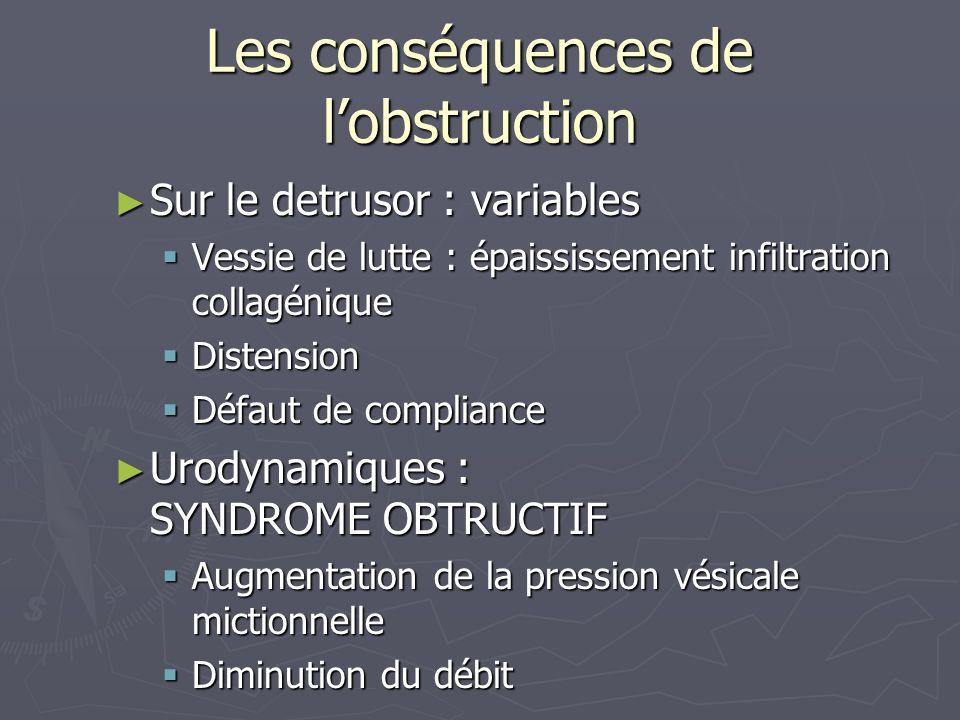 Sténose de lUrètre Etiologies : Etiologies : Traumatiques (choc direct, chute a califourchon,fracture du bassin, iatrogénie).