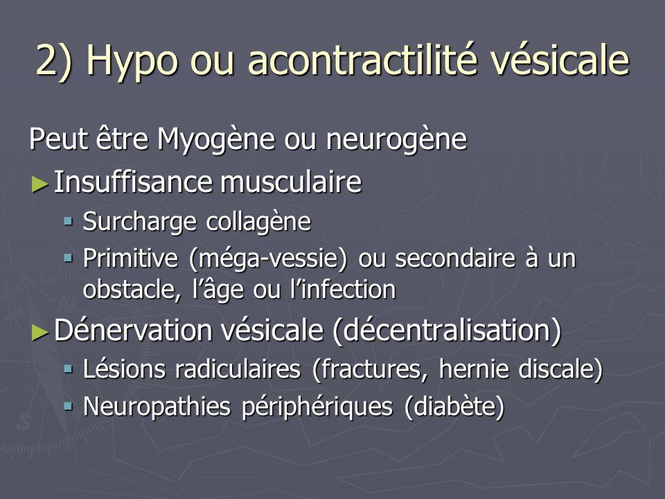 2) Hypo ou acontractilité vésicale Peut être Myogène ou neurogène Insuffisance musculaire Insuffisance musculaire Dénervation vésicale (décentralisation) Dénervation vésicale (décentralisation) Inhibition vésicale Inhibition vésicale Hypertonie sympathique (neuro, réflexes viscéraux inhibiteurs: distension ano rectale) Hypertonie sympathique (neuro, réflexes viscéraux inhibiteurs: distension ano rectale) Inhibition psychologique Inhibition psychologique = rétention hystérique : incapable de libérer sa contraction vésicale = rétention hystérique : incapable de libérer sa contraction vésicale du simulateur du simulateur