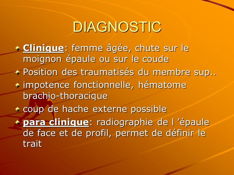 DIAGNOSTIC Clinique: femme âgée, chute sur le moignon épaule ou sur le coude Position des traumatisés du membre sup.. impotence fonctionnelle, hématom