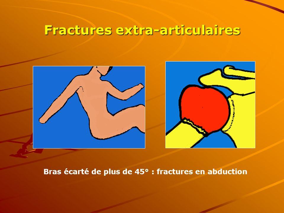Bras écarté de plus de 45° : fractures en abduction Fractures extra-articulaires