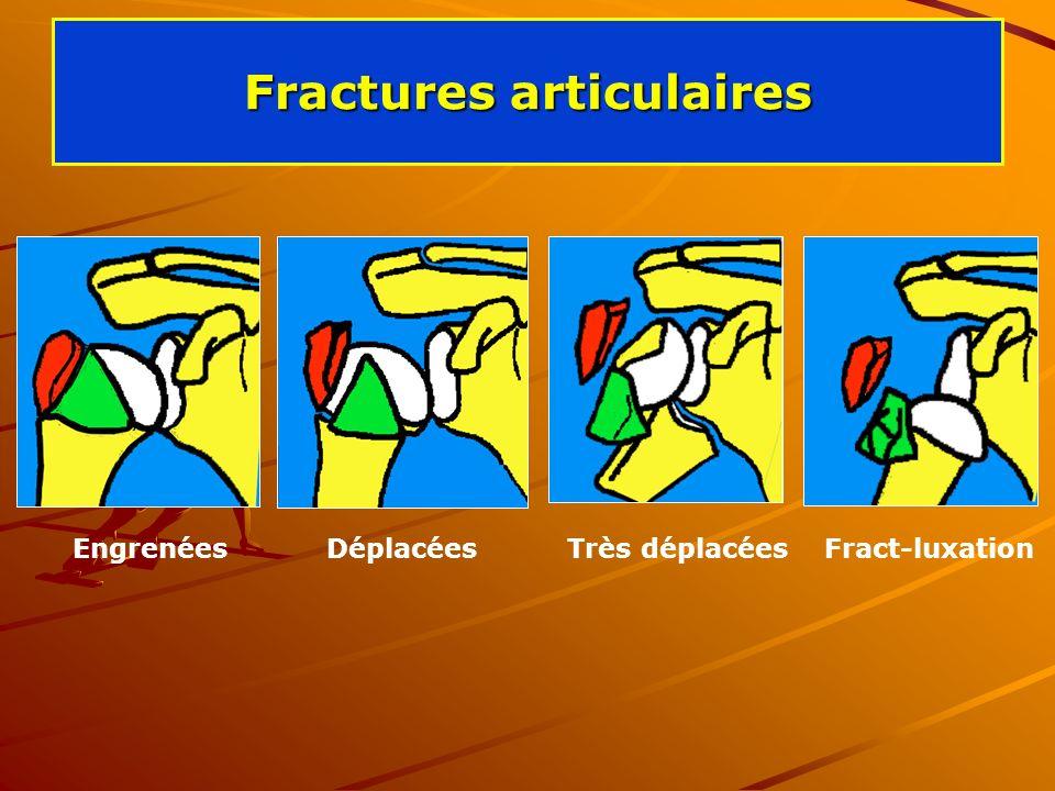 Fractures articulaires Engrenées Déplacées Très déplacées Fract-luxation