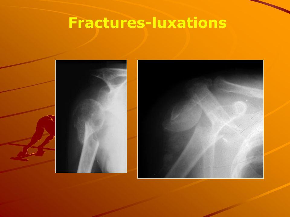 Fractures-luxations