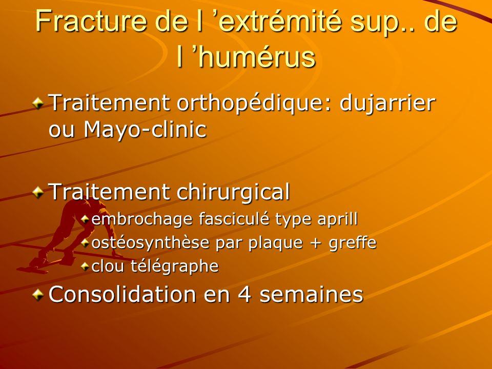 Fracture de l extrémité sup.. de l humérus Traitement orthopédique: dujarrier ou Mayo-clinic Traitement chirurgical embrochage fasciculé type aprill o