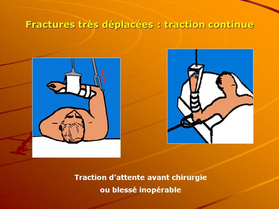Fractures très déplacées : traction continue Traction dattente avant chirurgie ou blessé inopérable
