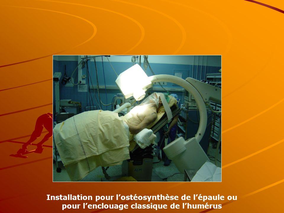 Installation pour lostéosynthèse de lépaule ou pour lenclouage classique de lhumérus