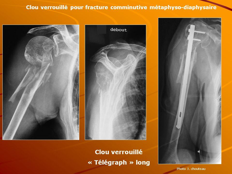 Photo J. chouteau Clou verrouillé pour fracture comminutive métaphyso-diaphysaire Clou verrouillé « Télégraph » long