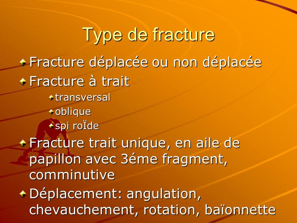 Type de fracture Fracture déplacée ou non déplacée Fracture à trait transversaloblique spi roÏde Fracture trait unique, en aile de papillon avec 3éme