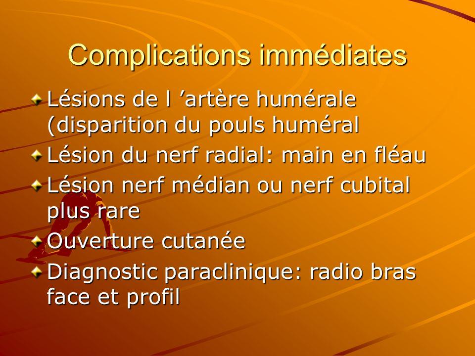 Complications immédiates Lésions de l artère humérale (disparition du pouls huméral Lésion du nerf radial: main en fléau Lésion nerf médian ou nerf cu
