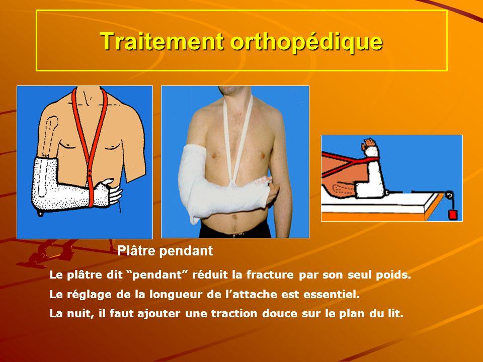 Traitement orthopédique Le plâtre dit pendant réduit la fracture par son seul poids. Le réglage de la longueur de lattache est essentiel. La nuit, il