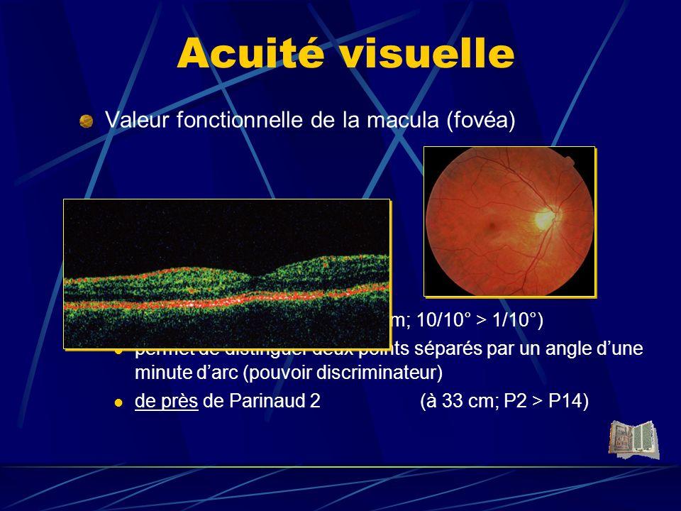 Caractérisation Astigmatisme caractérisé par : - une angle - une puissance Exemples : - 4 (- 1 à 90°) myope et astigmate + 1 (+ 2 à 50°) hypermétrope et astigmate -1 (+ 3 à 15 °) myope et hypermétrope