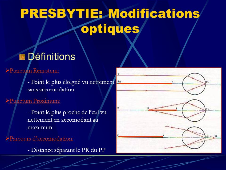 PRESBYTIE: Modifications optiques Définitions Punctum Remotum: - Point le plus éloigné vu nettement sans accomodation Punctum Proximum: - Point le plu