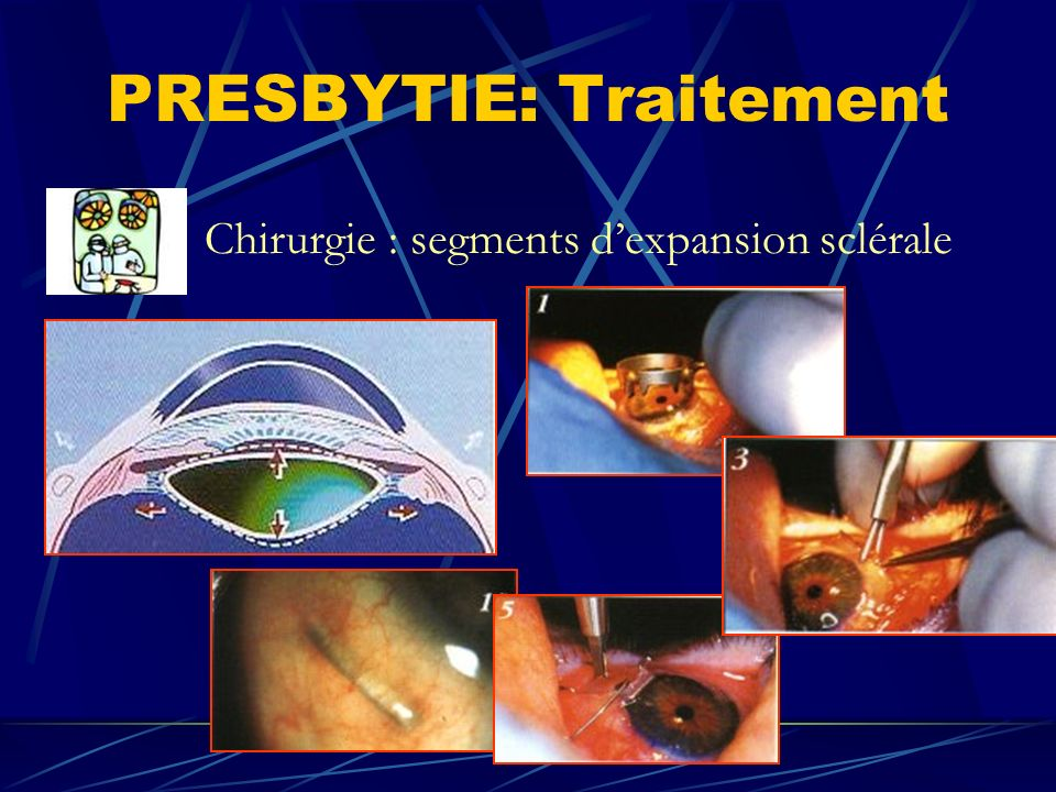 PRESBYTIE: Traitement Chirurgie : segments dexpansion sclérale