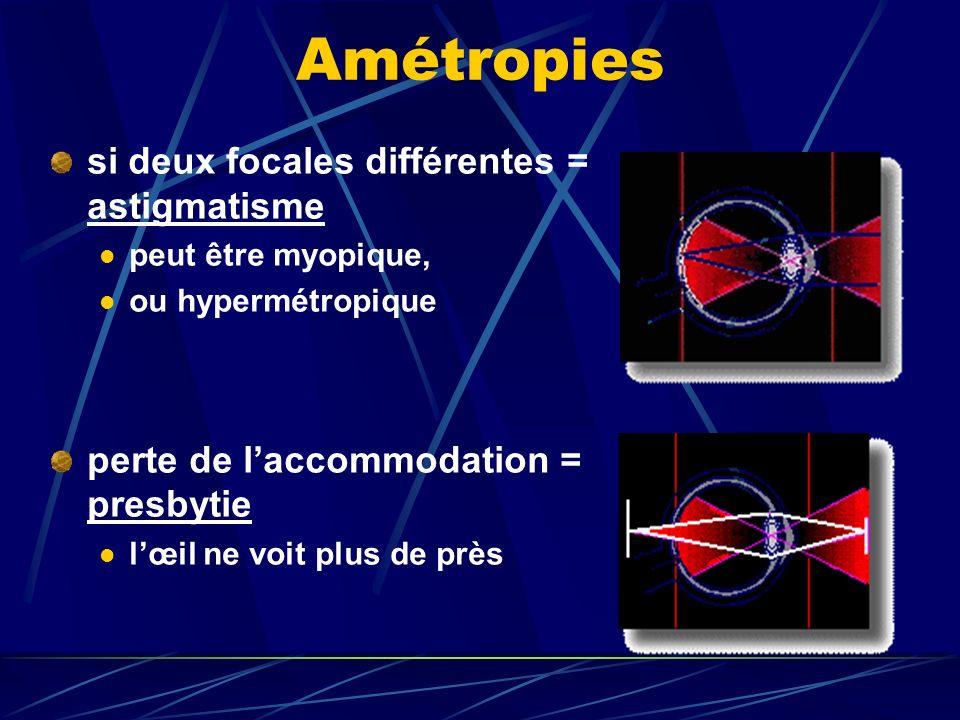 MYOPIE Définition : œil top réfringent. Les rayons lumineux convergent en avant de la rétine.