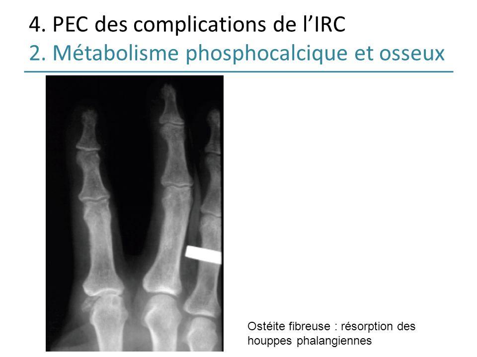 4. PEC des complications de lIRC 2. Métabolisme phosphocalcique et osseux Ostéite fibreuse : résorption des houppes phalangiennes