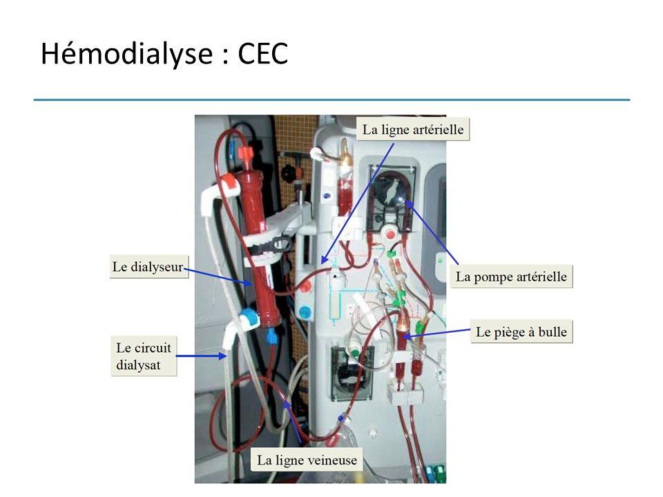 Hémodialyse : CEC
