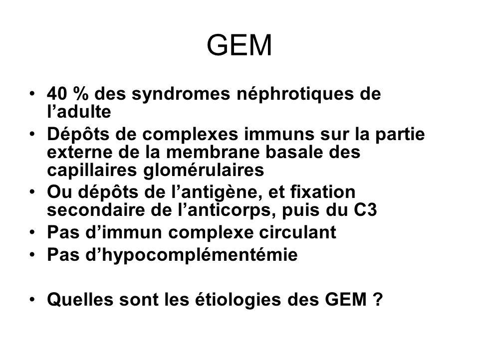 GEM 40 % des syndromes néphrotiques de ladulte Dépôts de complexes immuns sur la partie externe de la membrane basale des capillaires glomérulaires Ou