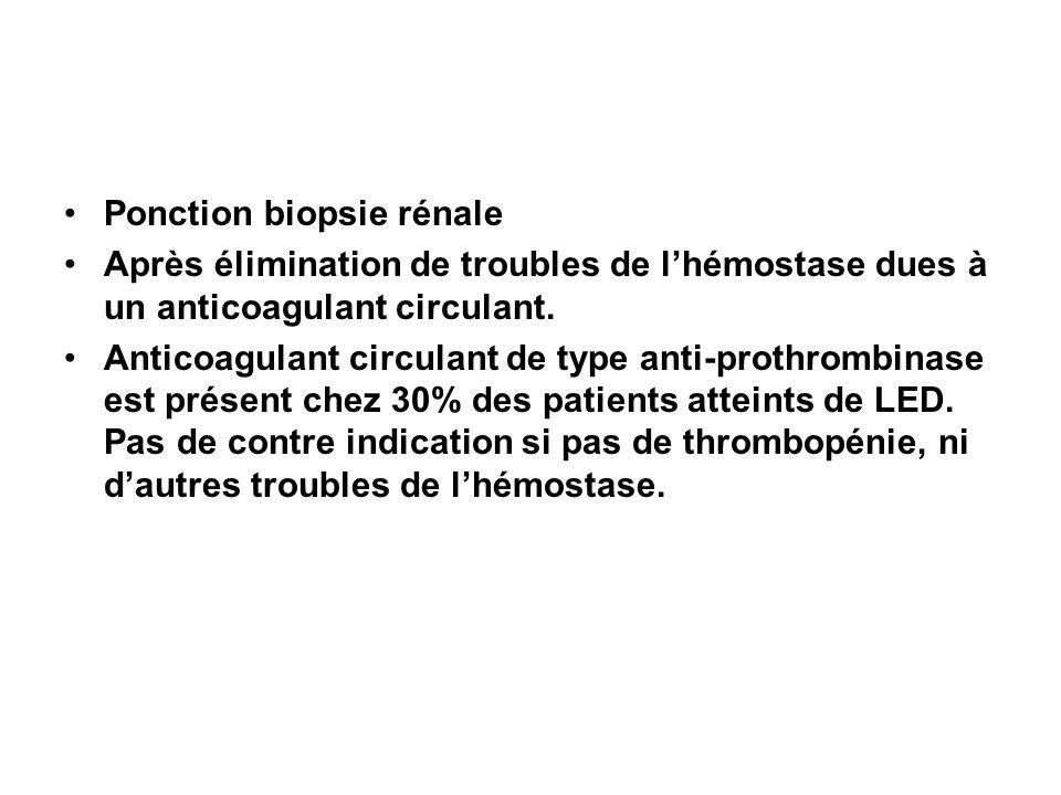 Ponction biopsie rénale Après élimination de troubles de lhémostase dues à un anticoagulant circulant. Anticoagulant circulant de type anti-prothrombi