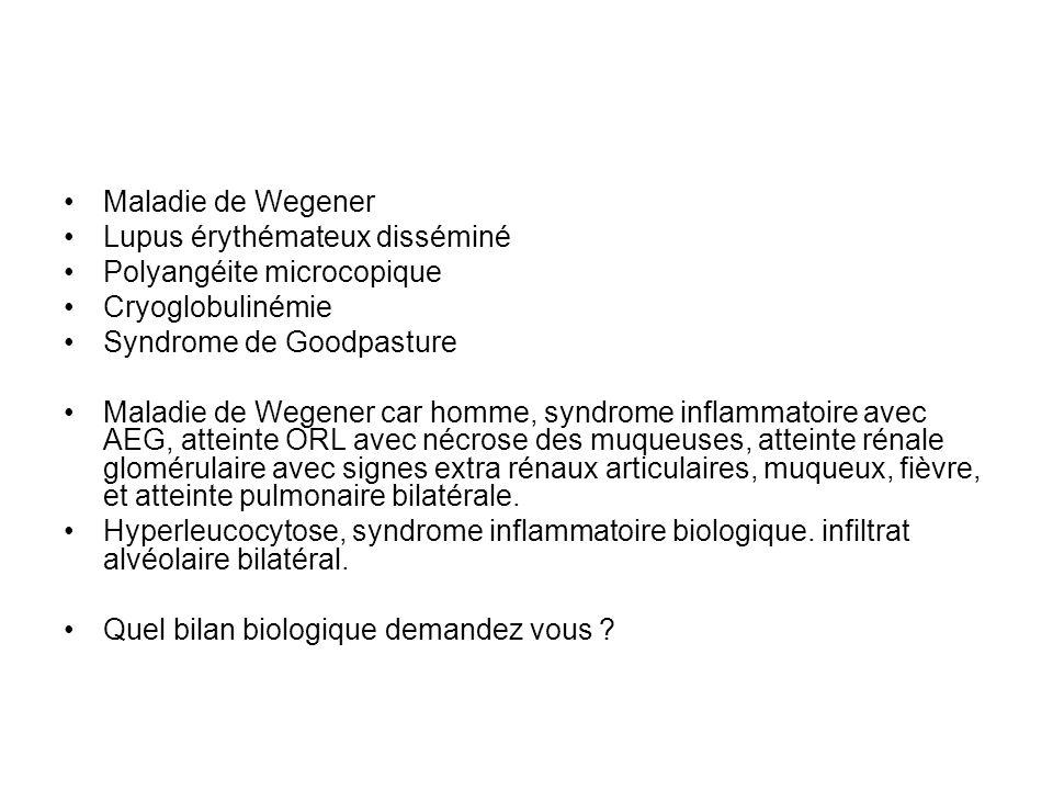 Maladie de Wegener Lupus érythémateux disséminé Polyangéite microcopique Cryoglobulinémie Syndrome de Goodpasture Maladie de Wegener car homme, syndro