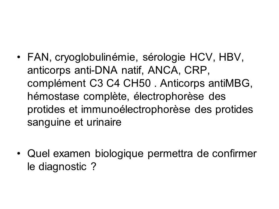 FAN, cryoglobulinémie, sérologie HCV, HBV, anticorps anti-DNA natif, ANCA, CRP, complément C3 C4 CH50. Anticorps antiMBG, hémostase complète, électrop