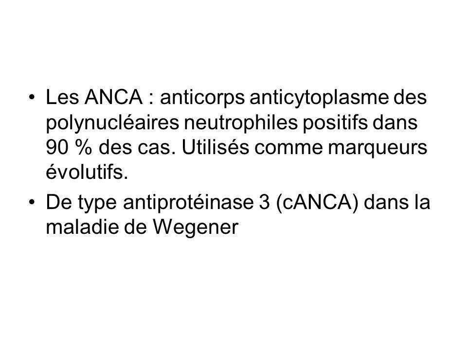 Les ANCA : anticorps anticytoplasme des polynucléaires neutrophiles positifs dans 90 % des cas. Utilisés comme marqueurs évolutifs. De type antiprotéi