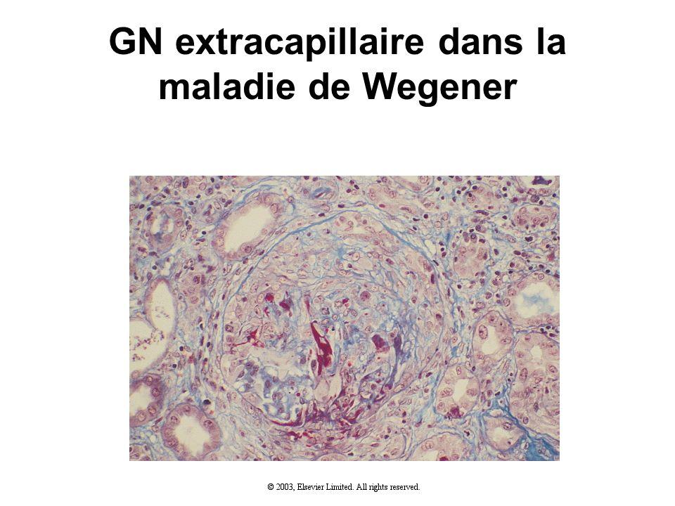 GN extracapillaire dans la maladie de Wegener