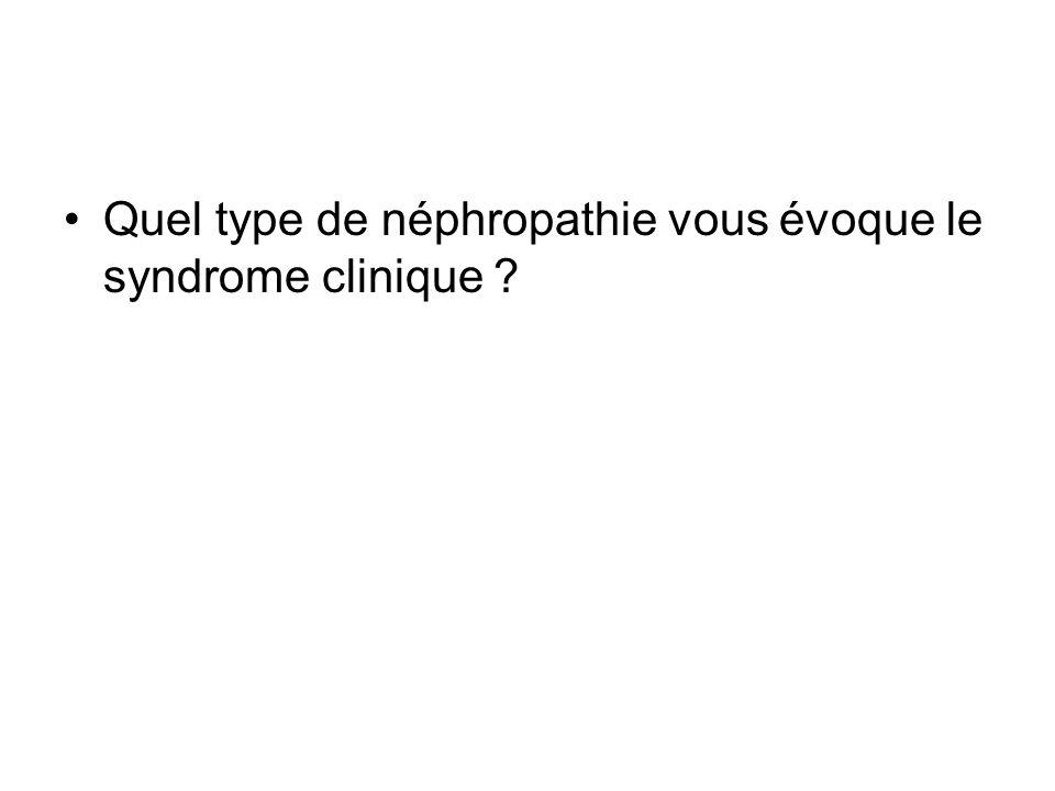 Quel type de néphropathie vous évoque le syndrome clinique ?