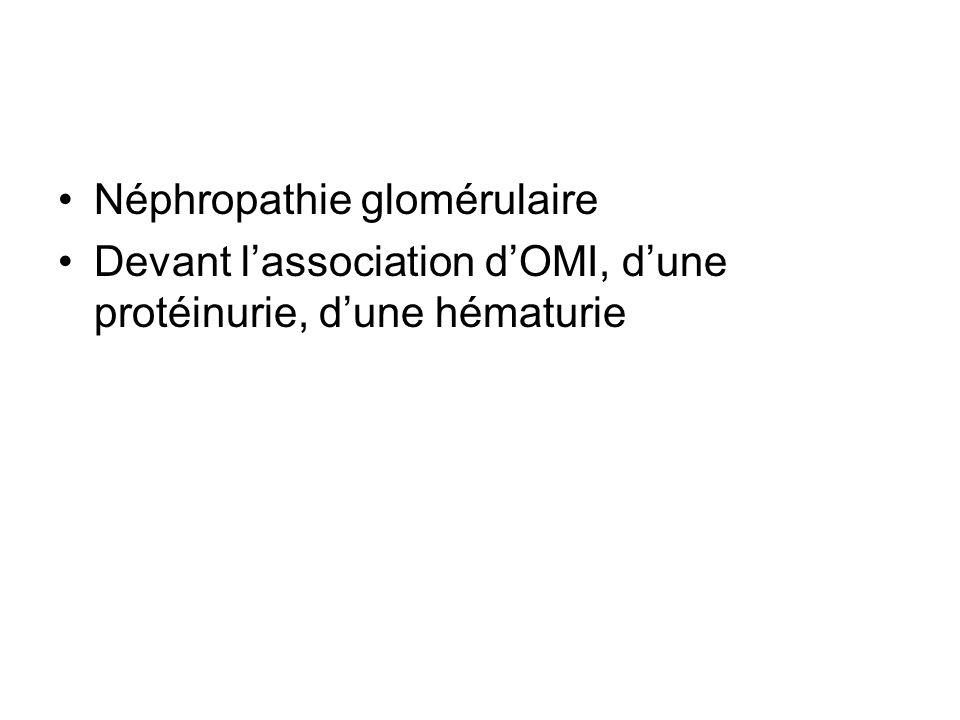 Néphropathie glomérulaire Devant lassociation dOMI, dune protéinurie, dune hématurie
