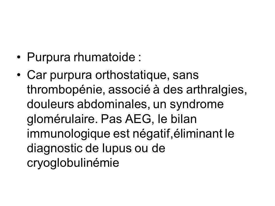 Purpura rhumatoide : Car purpura orthostatique, sans thrombopénie, associé à des arthralgies, douleurs abdominales, un syndrome glomérulaire. Pas AEG,