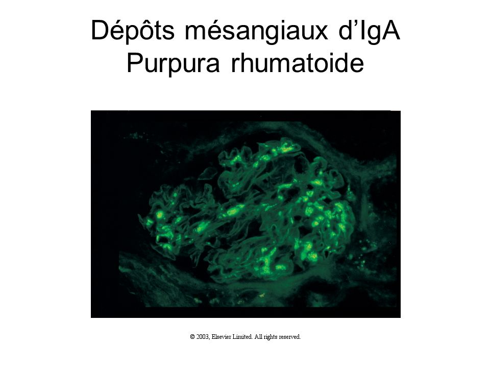 Dépôts mésangiaux dIgA Purpura rhumatoide