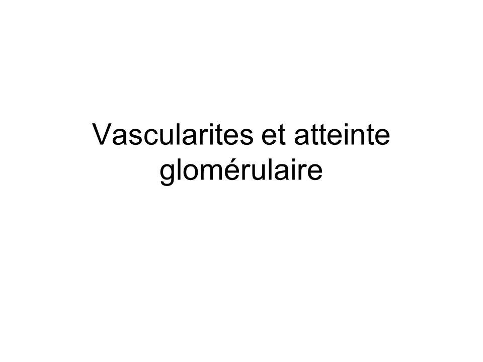 Vascularites et atteinte glomérulaire