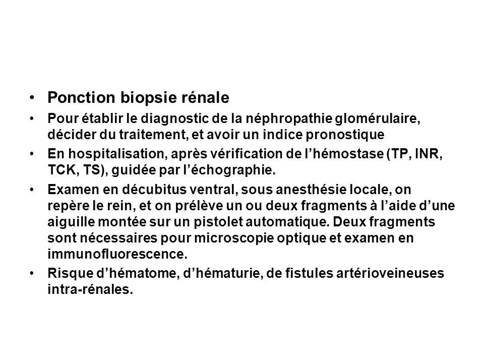 Ponction biopsie rénale Pour établir le diagnostic de la néphropathie glomérulaire, décider du traitement, et avoir un indice pronostique En hospitali