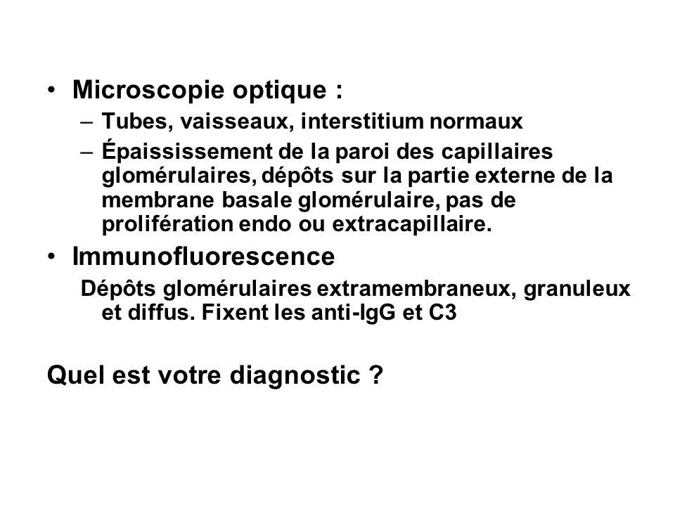 Microscopie optique : –Tubes, vaisseaux, interstitium normaux –Épaississement de la paroi des capillaires glomérulaires, dépôts sur la partie externe